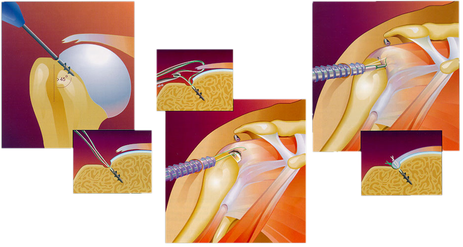 Shoulder Arthroscopy: Rotator Cuff Repair