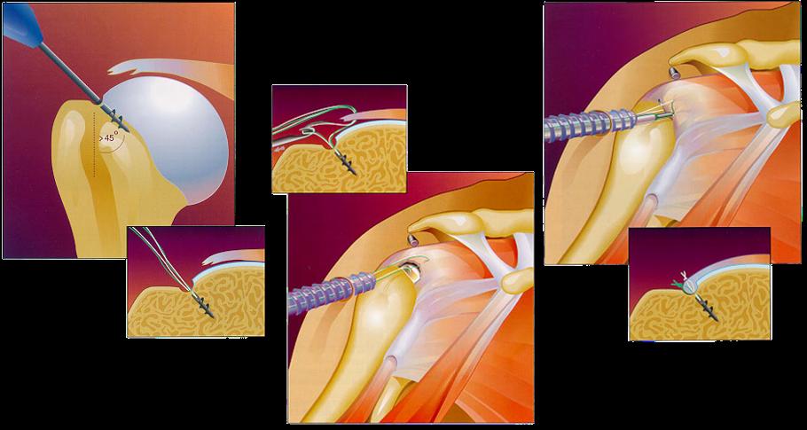Shoulder Arthroscopy: Rotator Cuff Repair
